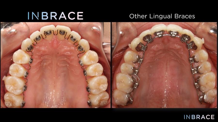 Types-of-Braces-INBRACE-Lingual-Braces-Comparison-Great-Neck-Orthodontics